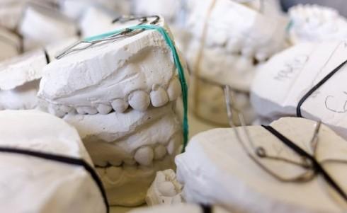 teeth-797308_640-624x384